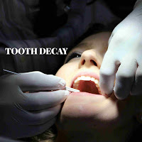 tooth decay remove by the dentist