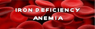 anemia-iron-deficiency