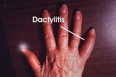 Apa Penyebab Penyakit Dactylitis?