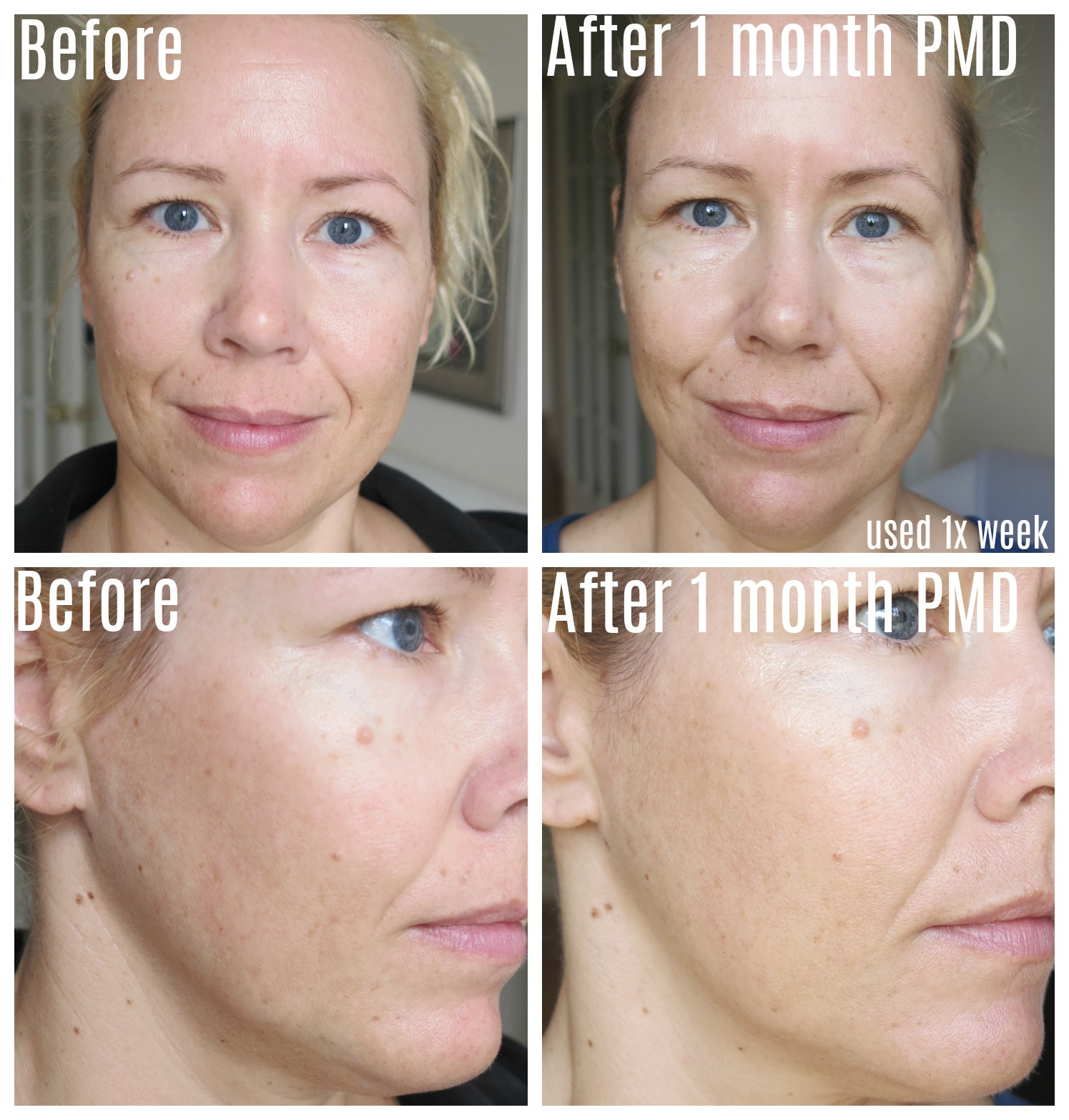 PMD PERSONAL MICRODERM 1 MONTH UPDATE WITH BEFORE AFTER PICTURES!