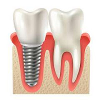 3 Reasons Why You Shouldn't Panic Before and After Implant Surgery