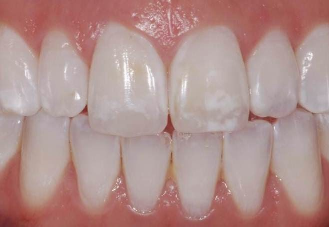 Dental Fluorosis due to exposure to too much fluoride