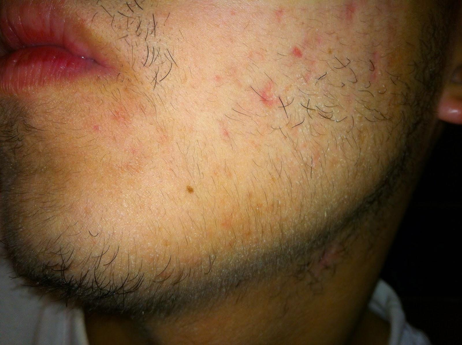 hermoso cabello disfunción eréctil efectos secundarios de minoxidil