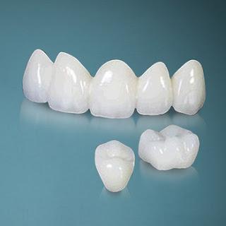 Bọc răng sứ quận 10 vơi nha khoa uy tín quận 10 Dr Ngọc