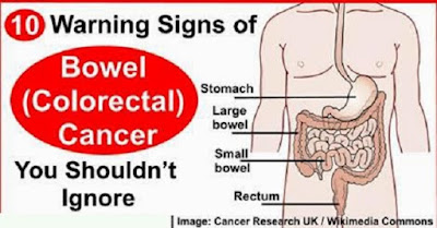 Bowel Cancer Symptoms