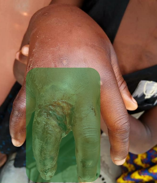 house maid maggot infested finger lagos
