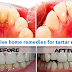 Best Home Remedies for Removing Tartar. Be your Own Dentist!