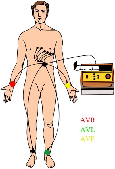 Urgencias Y Emergencias Extrahospitalarias Electrocardiografía Básica Colocación De Electrodos