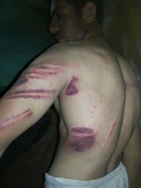 مصري يعمل في كسلا بالسودان تم تعذيبه علي امنجيه