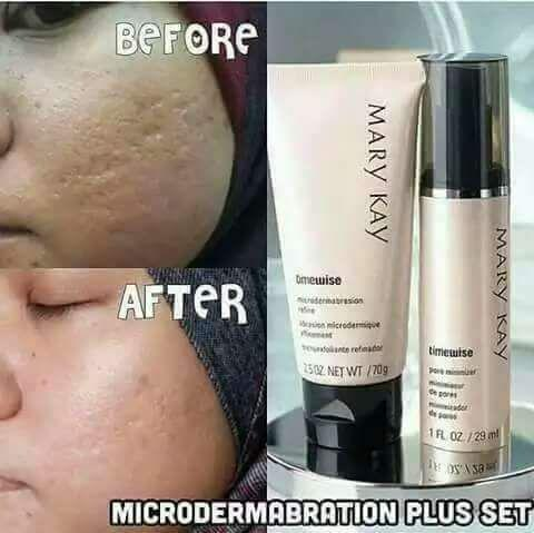 mary kay microdermabrasion set before and after