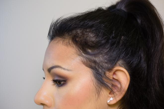 Rụng tóc sau sinh phải làm thế nào