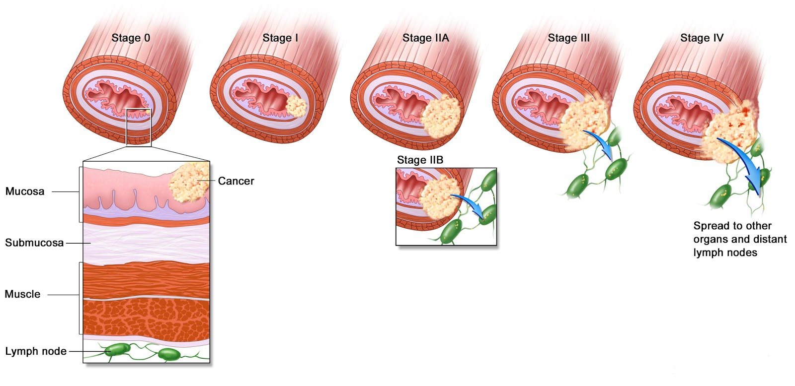 Pathophysiology Of Colon Cancer Diagram Ford 4000 Tractor Wiring Pathology Outlines Tnm Staging Esophageal Carcinomas