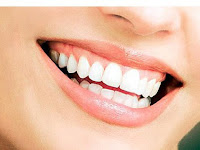 Ini Dia Langkah Langkah Untuk Memutihkan Gigi Dengan Menggunakan Garam