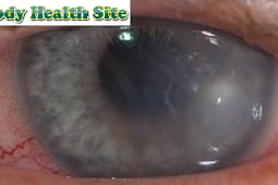 Xerophthalmia, Definition, Symptoms, Causes, Diagnosis, Treatment