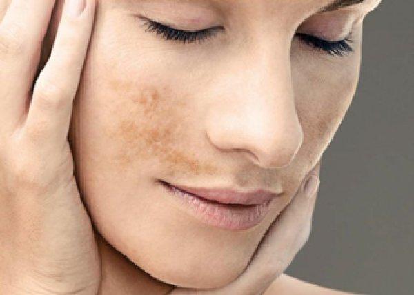 Como eliminar manchas de la cara por el embarazo