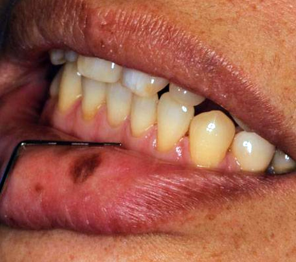 Oral Lesions