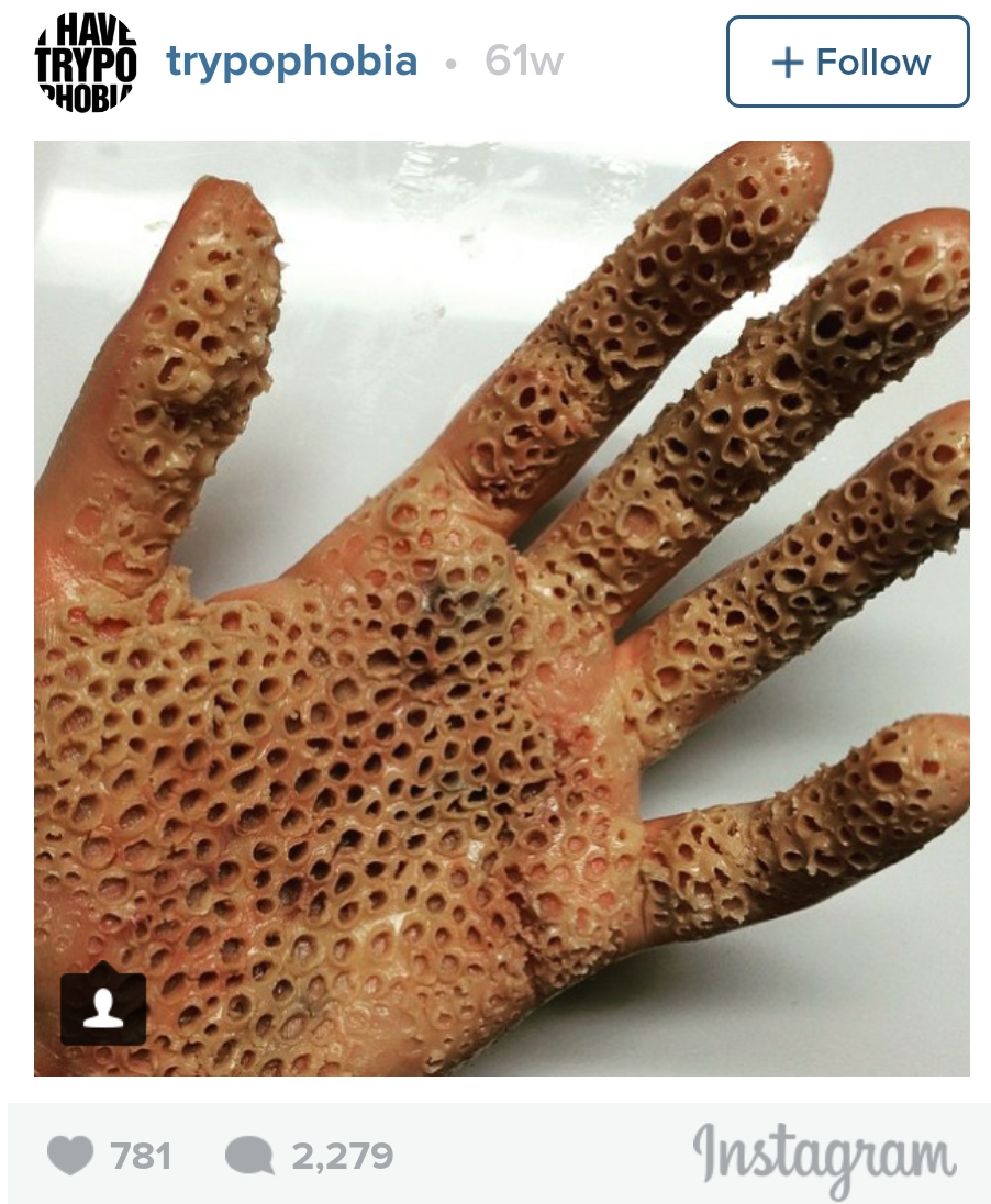 Trypophobia: Why these simple images are freaking people out