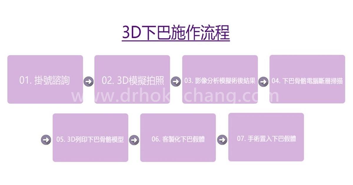 台中3D列印下巴-3dchin09