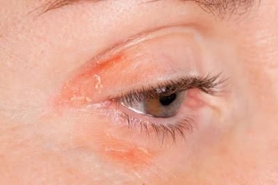 Dommages causés par porter du maquillage expiré