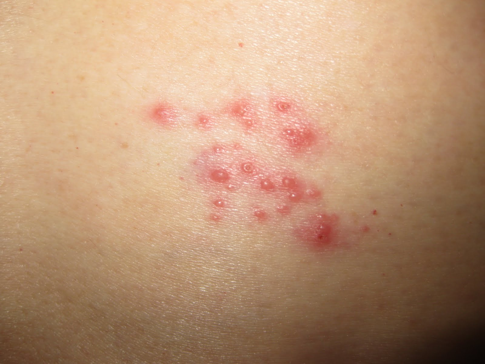 Galleries Related: Shingles On Leg