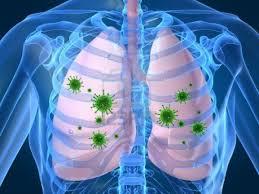 obat flek paru paru di apotik