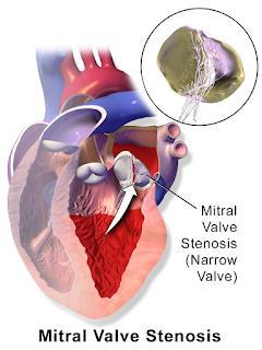 Asuhan keperawatan pada klien mitral stenosis