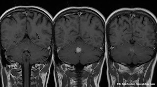 Dr Balaji Anvekar S Neuroradiology Cases A Focal Vermian