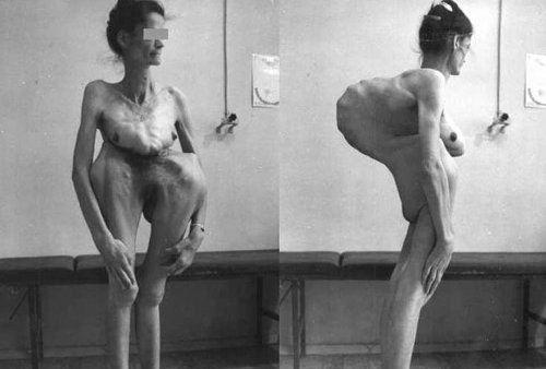 gambar manusia aneh kelainan bentuk tubuh