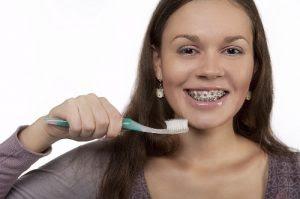 Khi niềng răng có bị vàng răng không?