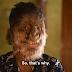 Meet the Indian boy in rare condition calls them 'Werewolf'
