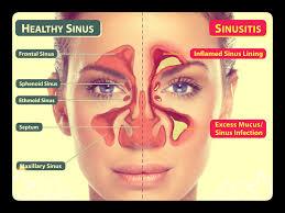 Sinus infectoin
