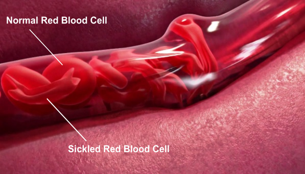 About Sickle Cell Disease, SCD
