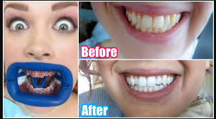 whitening teeth after eat avoid foods during