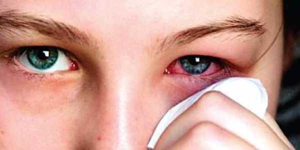 Mata Merah Tapi Tidak Sakit