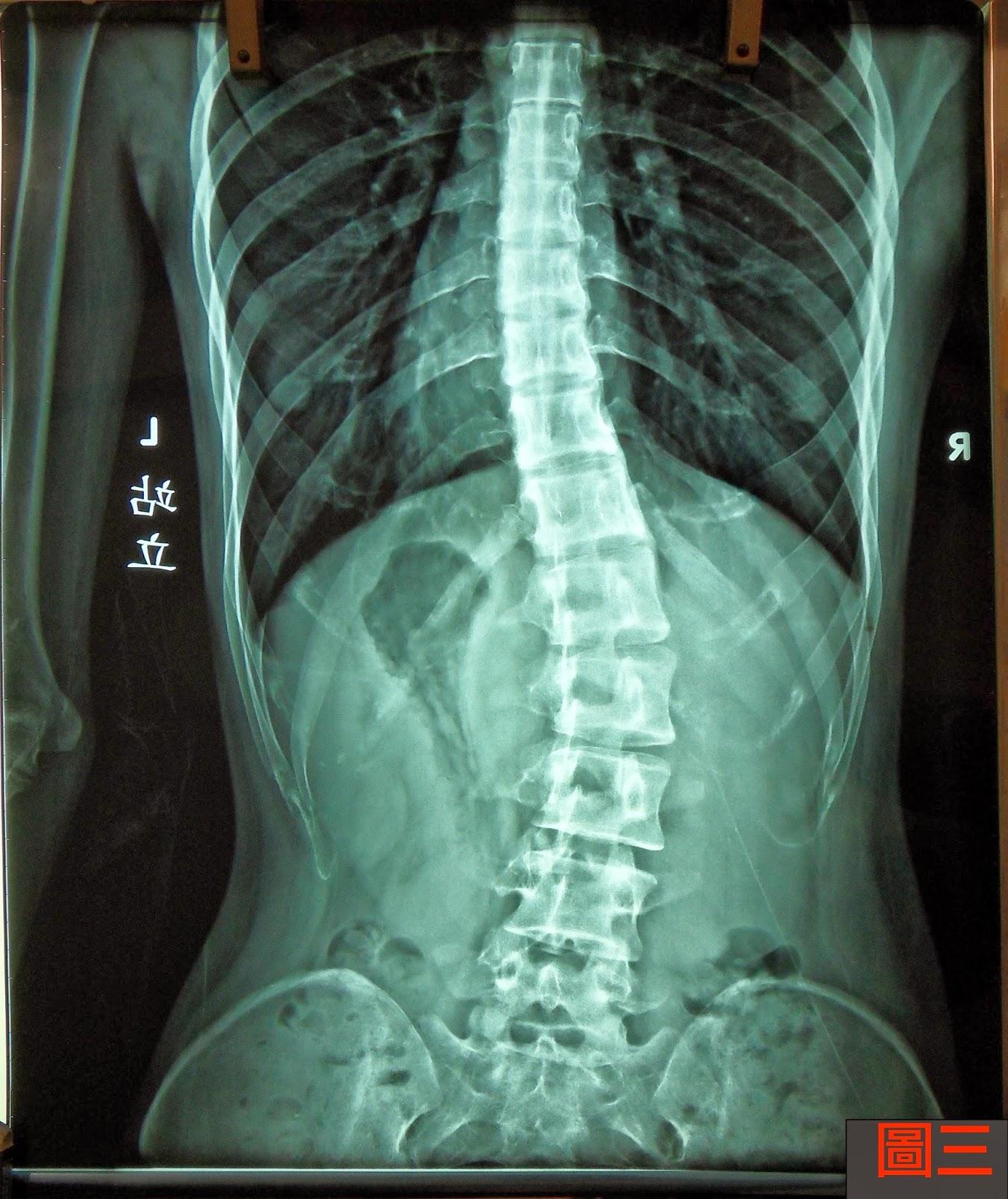 脊椎側彎手術, 脊椎側彎開刀, 脊椎側彎矯正, 脊椎側彎治療, 脊椎側彎矯正成功案例, 脊椎側彎手術成功率, 脊椎側彎復健