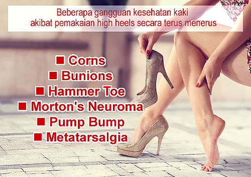 Sepatu Wanita Hak Tinggi 725846e630