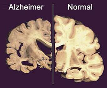 #Mal de Alzheimer