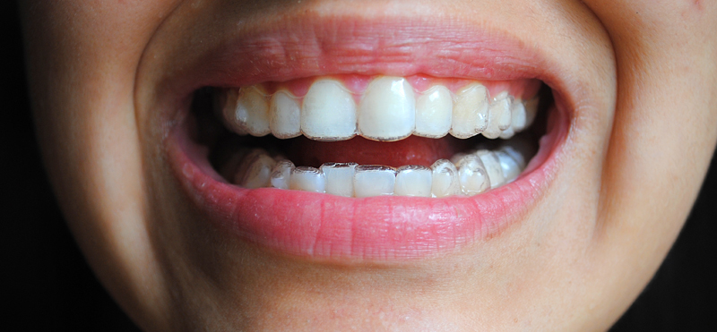 My Life with Invisalign: Day one - Inserting the Aligners ...
