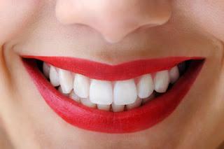 Cara Memutihkan Gigi Secara Alami Dengan Cepat, Mudah dan Permanen