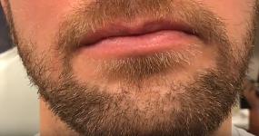sakal ekimi nasıl oluyor