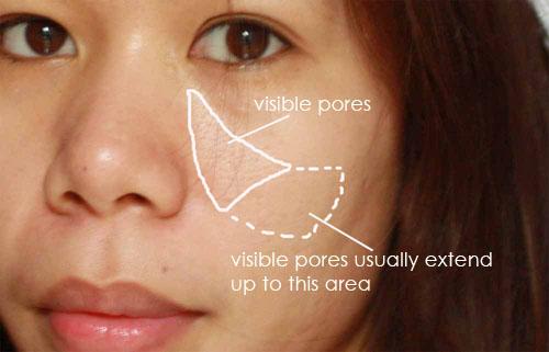 Facial Pore Size 75