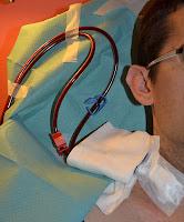 detalle de cateter insertado en cuello en plena sesión de hemodialisis