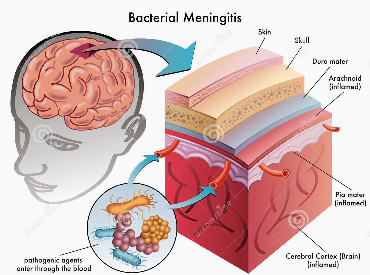 AdventureLisa: What is meningitis?  AdventureLisa: ...