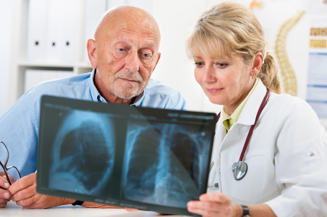 Top Pleural Mesothelioma Doctors and Specialists Near You
