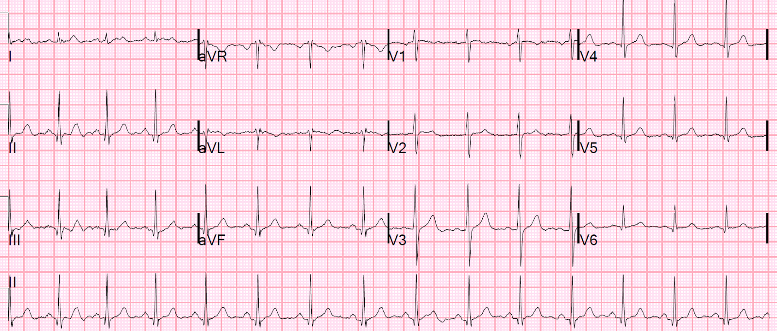 Normal Ecg Pattern Simple Decorating Design