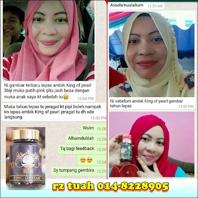 promosi king of pearl testimoni