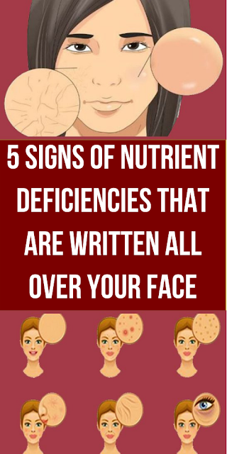 5 Face Signals Of Insufficient Nutrition