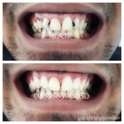 Gigi depan hitam berlubang keropos tambal ahli gigi sas