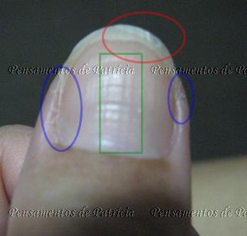 Tratamento com Base Fortalecedora Esmalfort