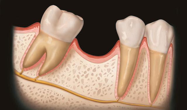 Masalah Gigi Geraham yang Sering Dialami Ketika Tumbuh
